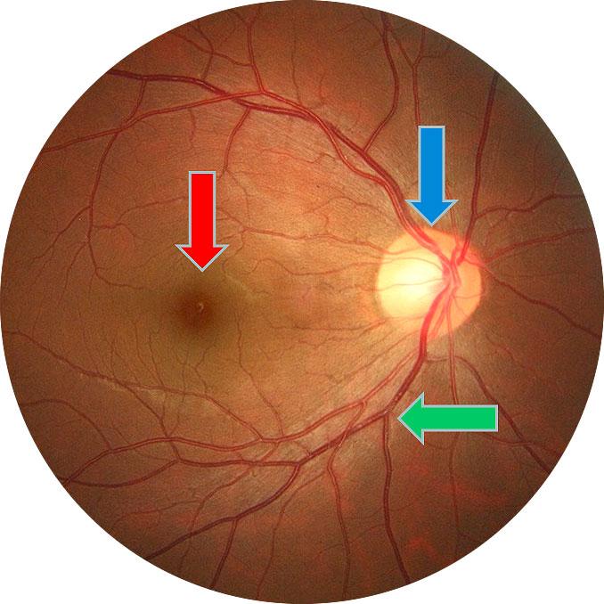 exame-de-fundo-de-olho