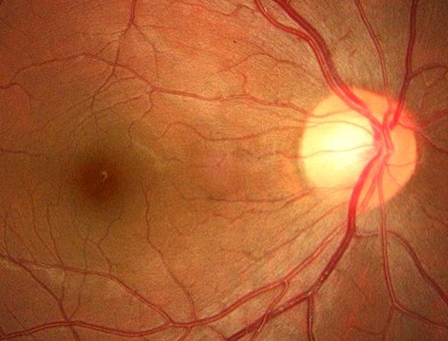 exame-de-fundo-de-olho-destaque2